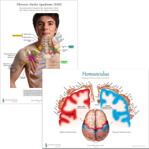 Homunculus and Thoracic Outlet Poster